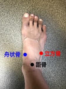 足部の骨の配列