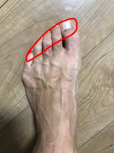 足裏の荷重位置